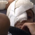 Yémen : Le cris d'alarme d'António Guterres