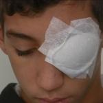 Gilets jaunes & émeutes : Le témoignage de Ramy, grièvement blessé à l'œil par un tir de la police à Vénissieux (Vidéo)