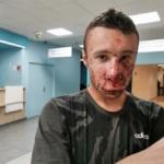 Lanceurs d'alerte et partage automatique : Un journaliste gravement blessé !