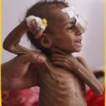 Yemen : Qu'est devenue l'humanité ?